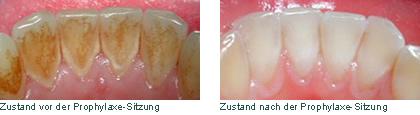 Erflogreiche Prophylaxe Zahnreinigung