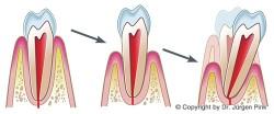 Ablauf Parodontosebehandlung