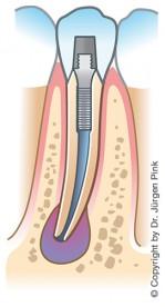 Wurzelspitzenresektion: Entzündung der Zahnwurzel
