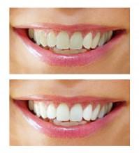Weißere Zähne durch professionelles Bleaching