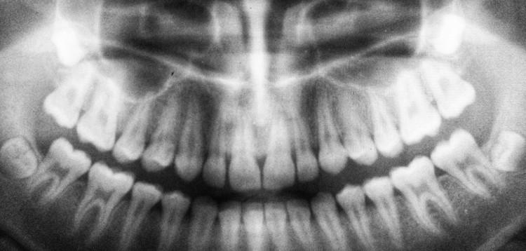 Digitales Röntgen: Erklärung und Vorteile - - Zahnarztpraxis Max34 | Dr. Pink | Dr. Wolferstätter | Kollegen