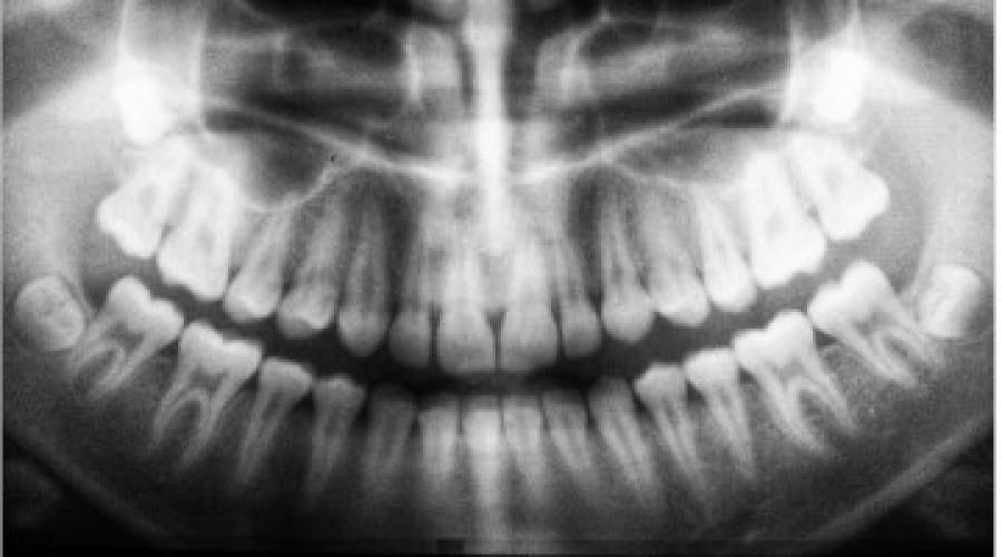 Digitales Röntgen: Erklärung und Vorteile