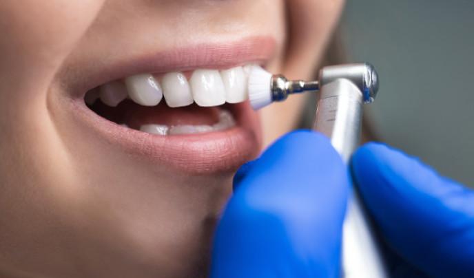 Professionelle Zahnreinigung: Ablauf