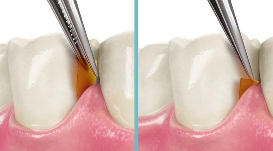 Parodontosebehandlung mit dem PerioChip®