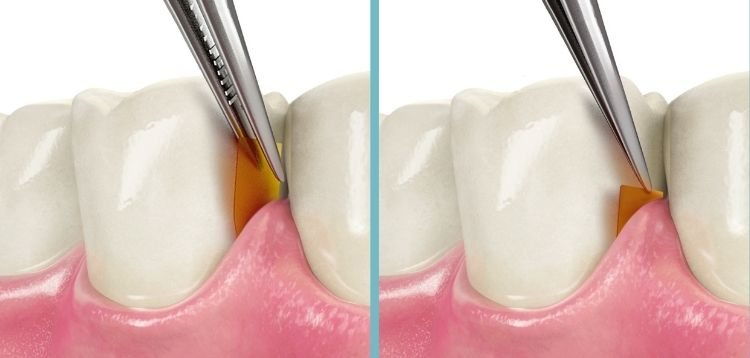 Parodontosebehandlung mit dem PerioChip®  Zahnarztpraxis Dr. Pink   Dr. Wolferstätter   Kollegen