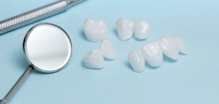 Veneers: Die häufigsten Fragen und Antworten | Zahnarztpraxis Dr. Pink | Dr. Wolferstätter | Kollegen