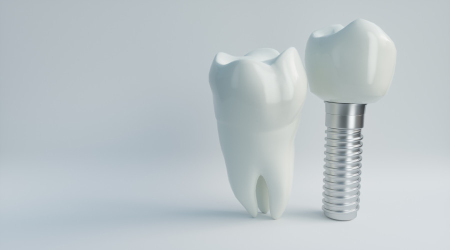 Mehr Lebensqualität durch Implantate: Behandlung und Nachsorge