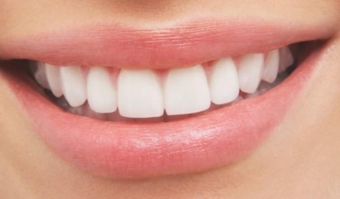 Zahnschmelz stärken – So wird dies richtig gemacht