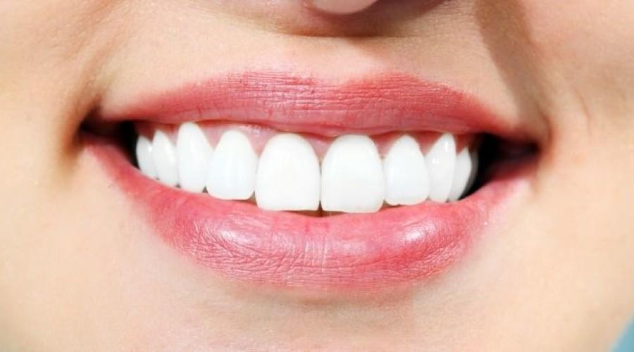 Zahnlücken schließen: 4 Methoden im Überblick